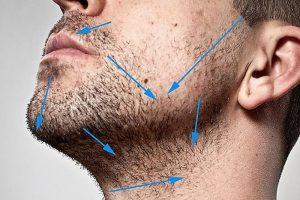 Почему у мужчин шелушится кожа лица после бритья и как этого избежать